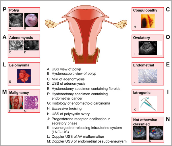 uterine cancer bleeding pattern