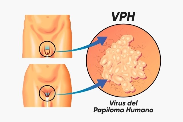 cancer immuno hormonal hpv virus chance of cancer