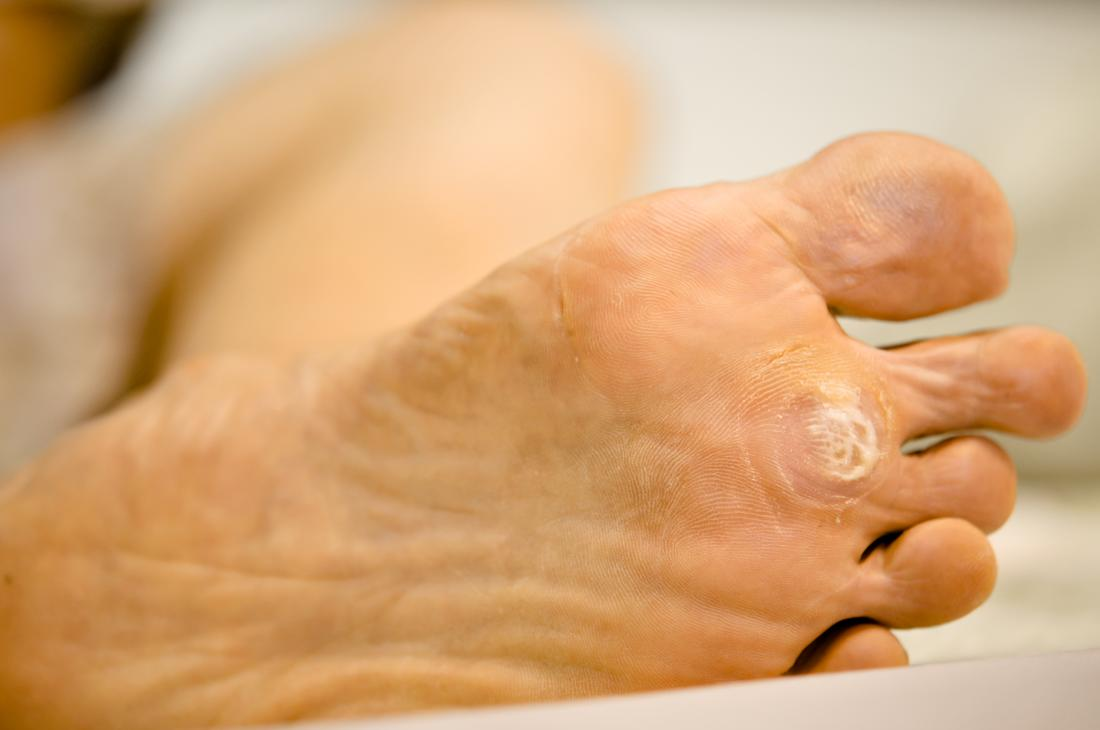 wart foot sole