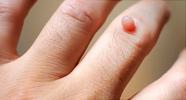 wart or viral infection of the skin cancer pulmonar origen causas consecuencias
