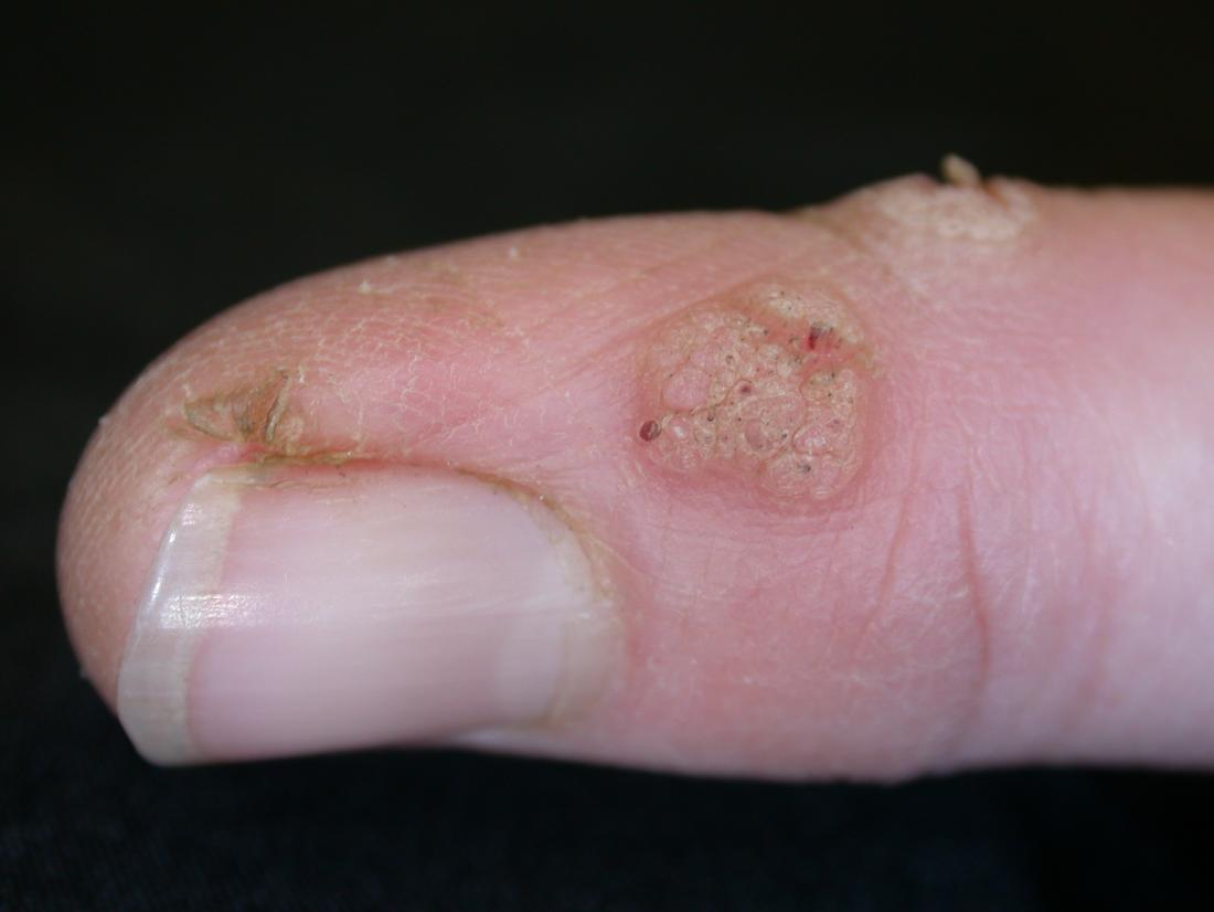 warts on hands and fingers test del papilloma virus nelluomo