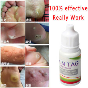warts on skin removal