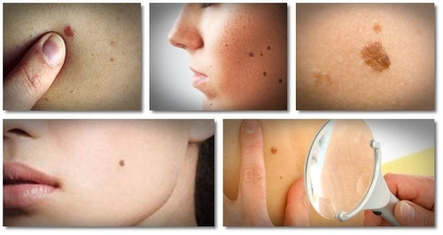 warts removal treatment papilloma breast surgery