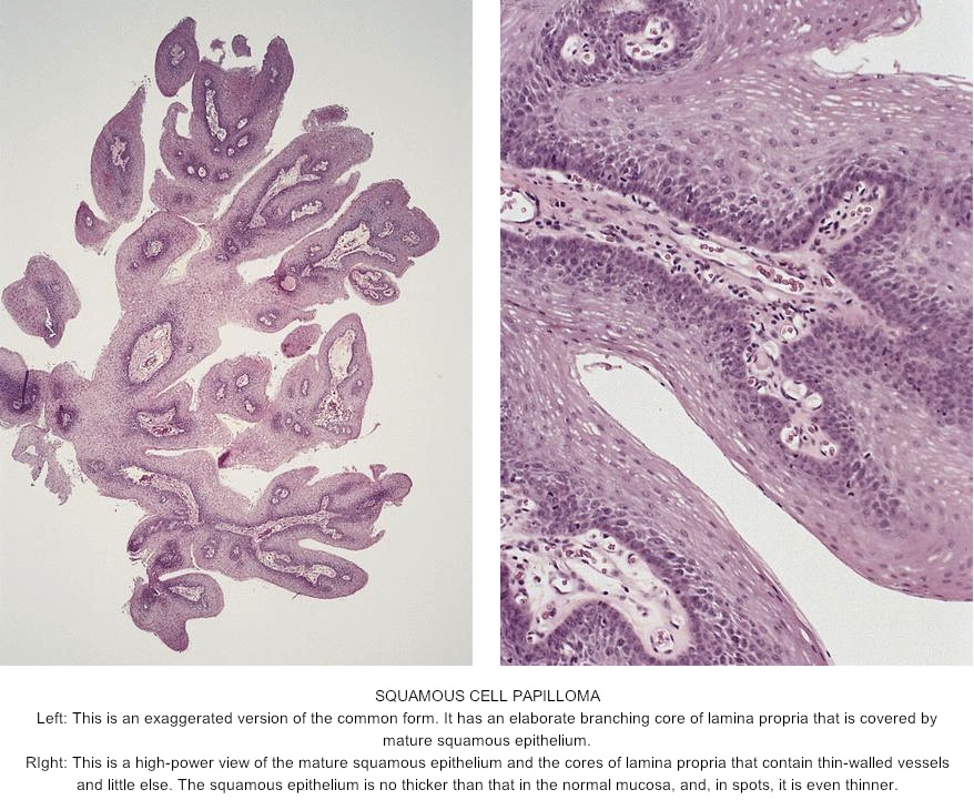 Diagnostic Pathology GI Endoscopic Correlations