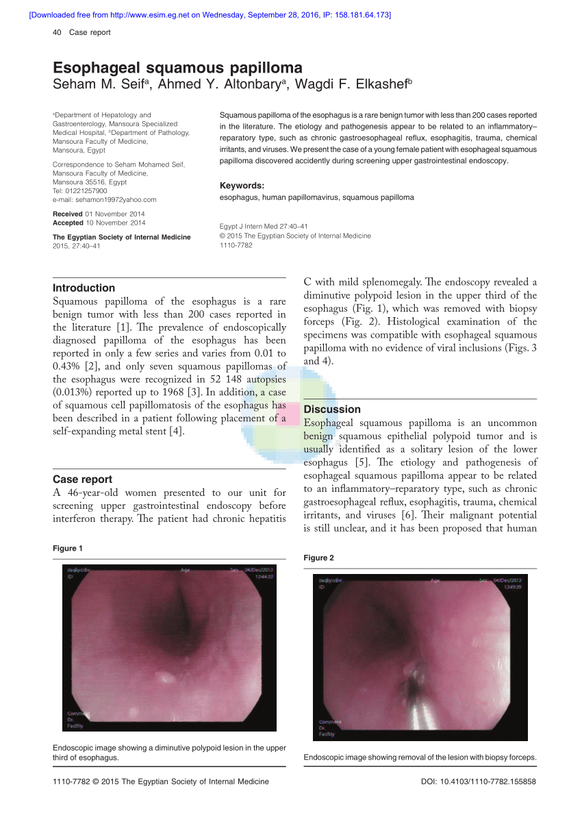 esophageal papilloma cancer reason for hpv vaccine