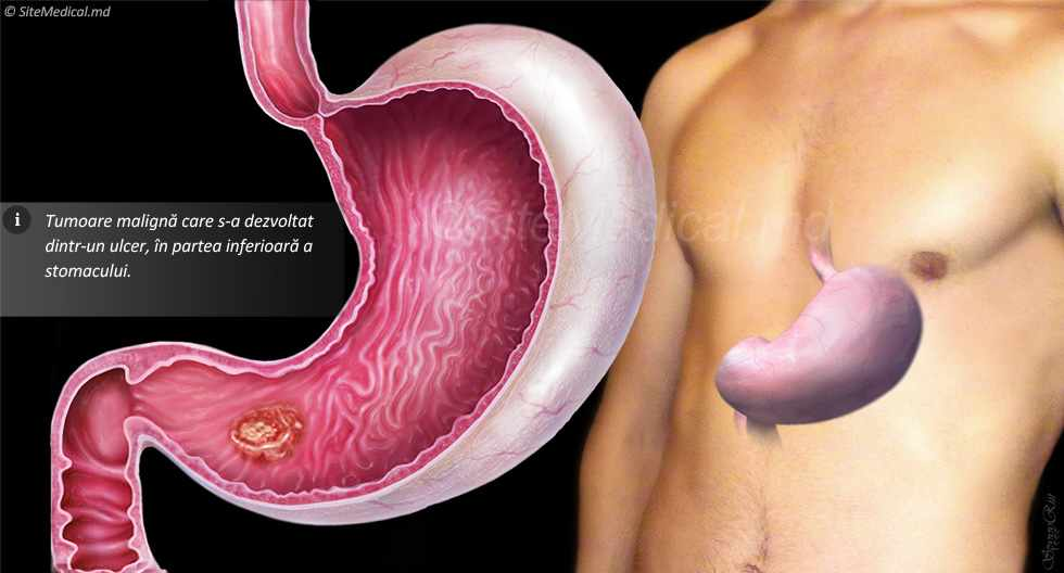 gastric cancer of causes hpv causing head and neck cancer
