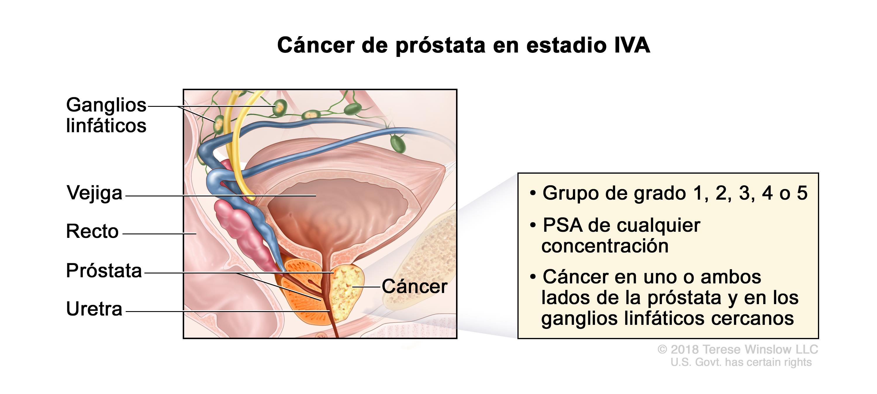 cancer de prostata fisiopatologia helminth root word definition