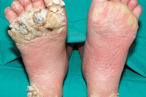 warts on a foot
