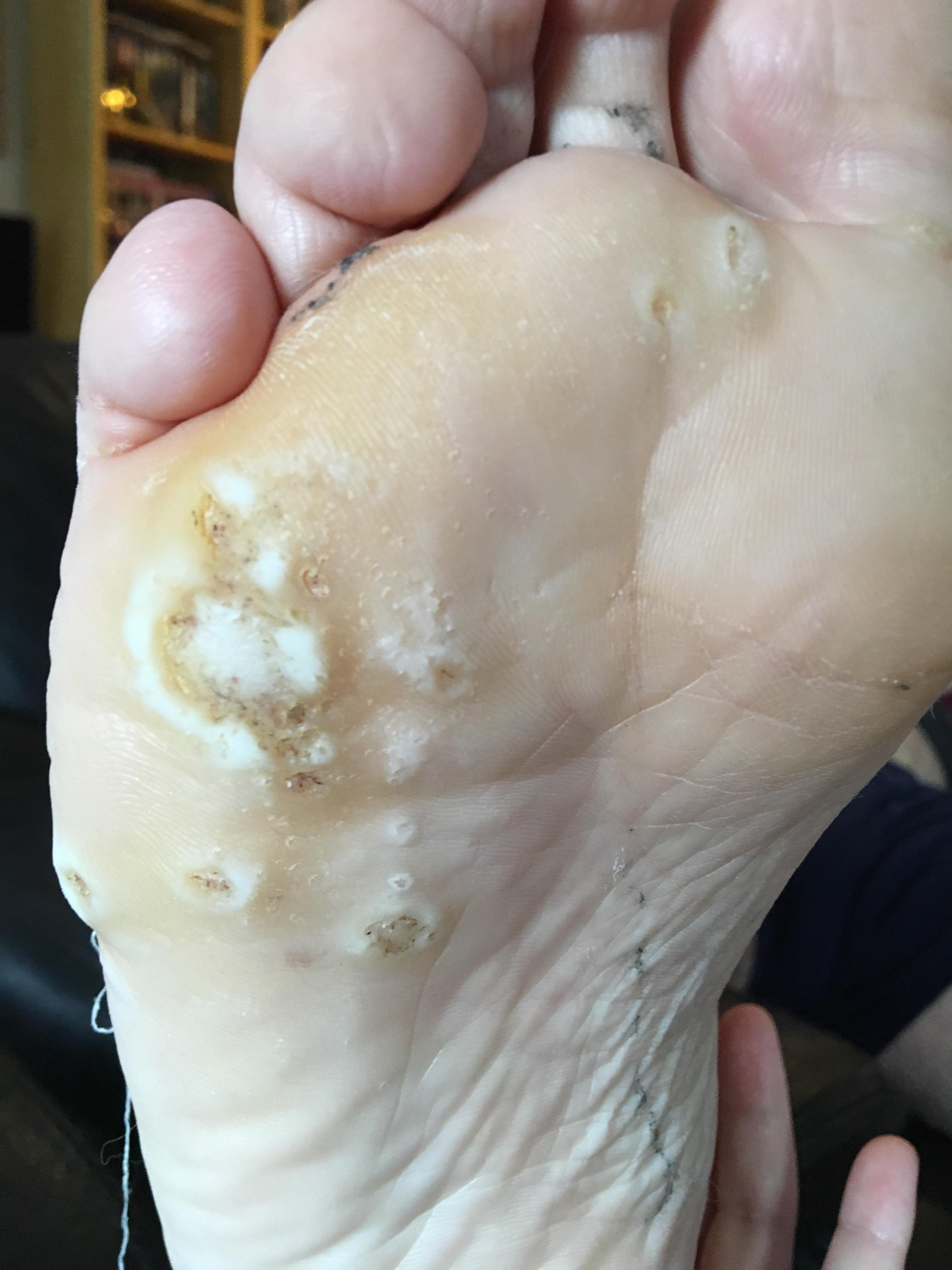 wart treatment using duct tape