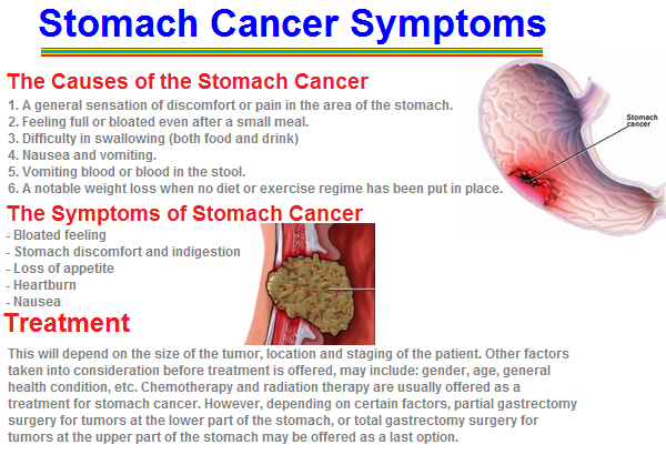Modern diagnosis problems of gastric stump cancer