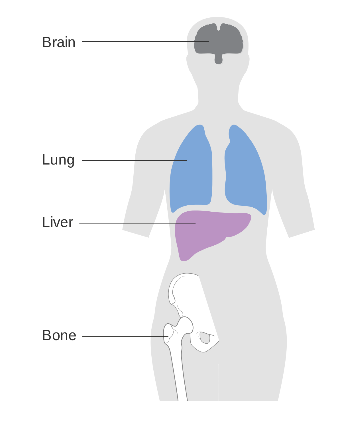 metastatic cancer from carcinoma
