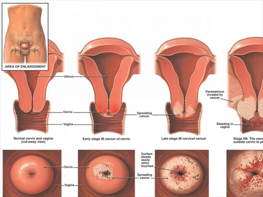cervical cancer yeast infection