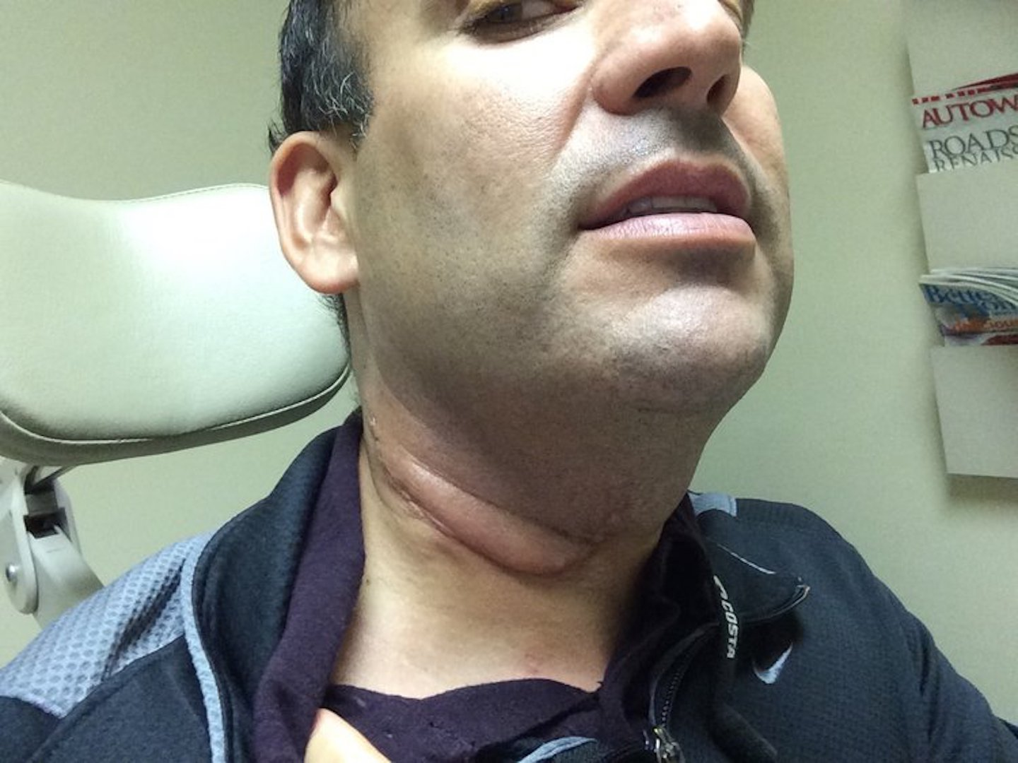 hpv head neck cancer stage one hpv cervical cancer