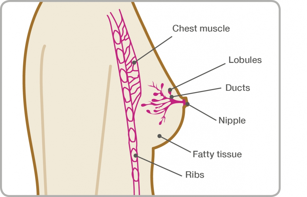 breast cancer benign symptoms
