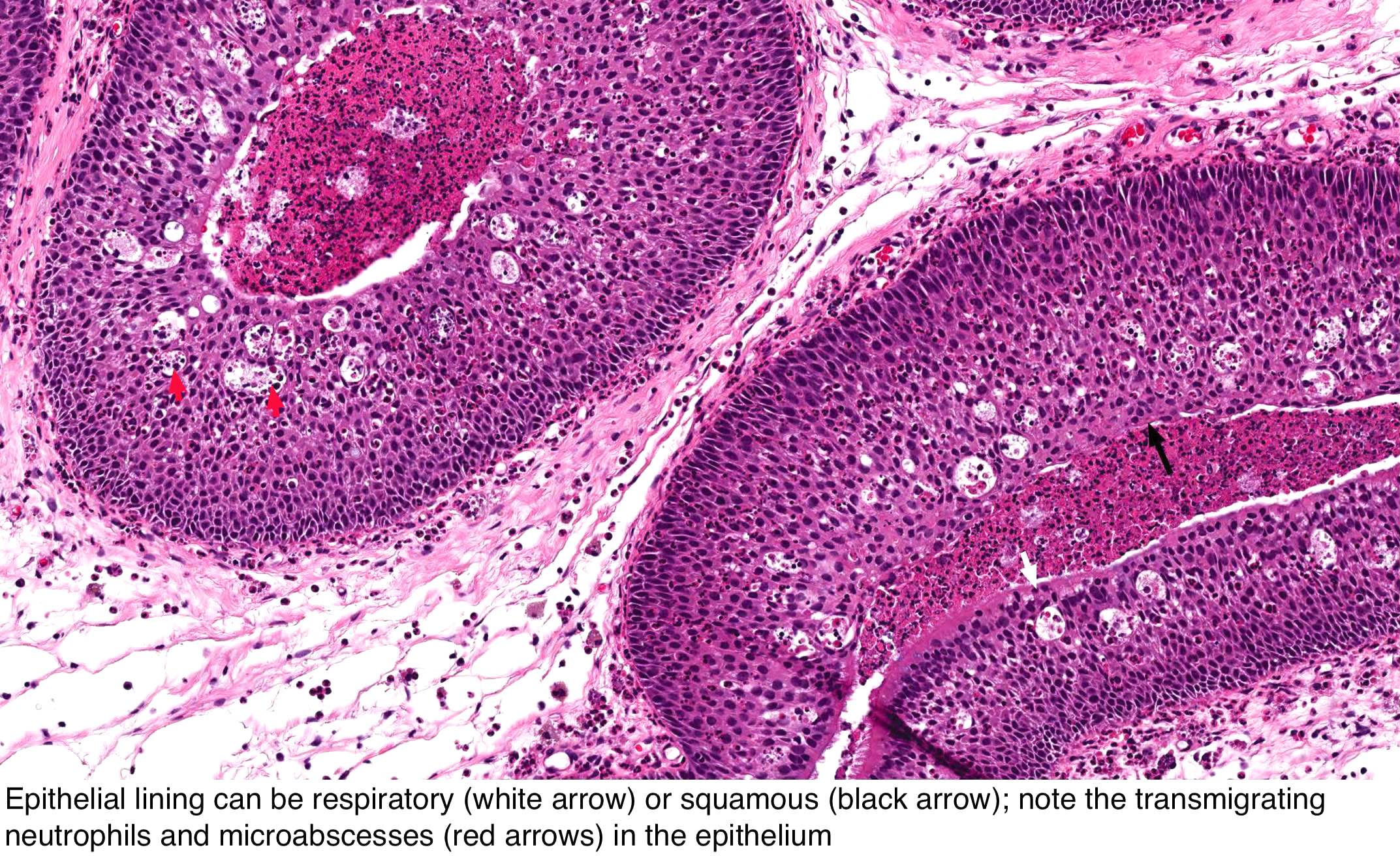 inverted papillomas of the nasal cavity hpv virus in pap smear