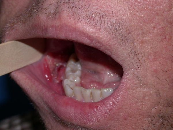 can hpv cause jaw cancer