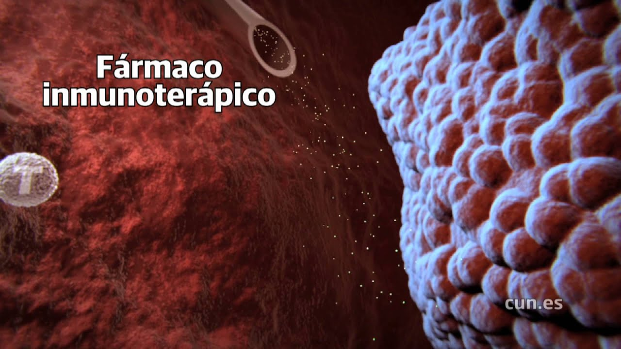 virus del papiloma y tabaquismo hepatocellular cancer metabolic syndrome