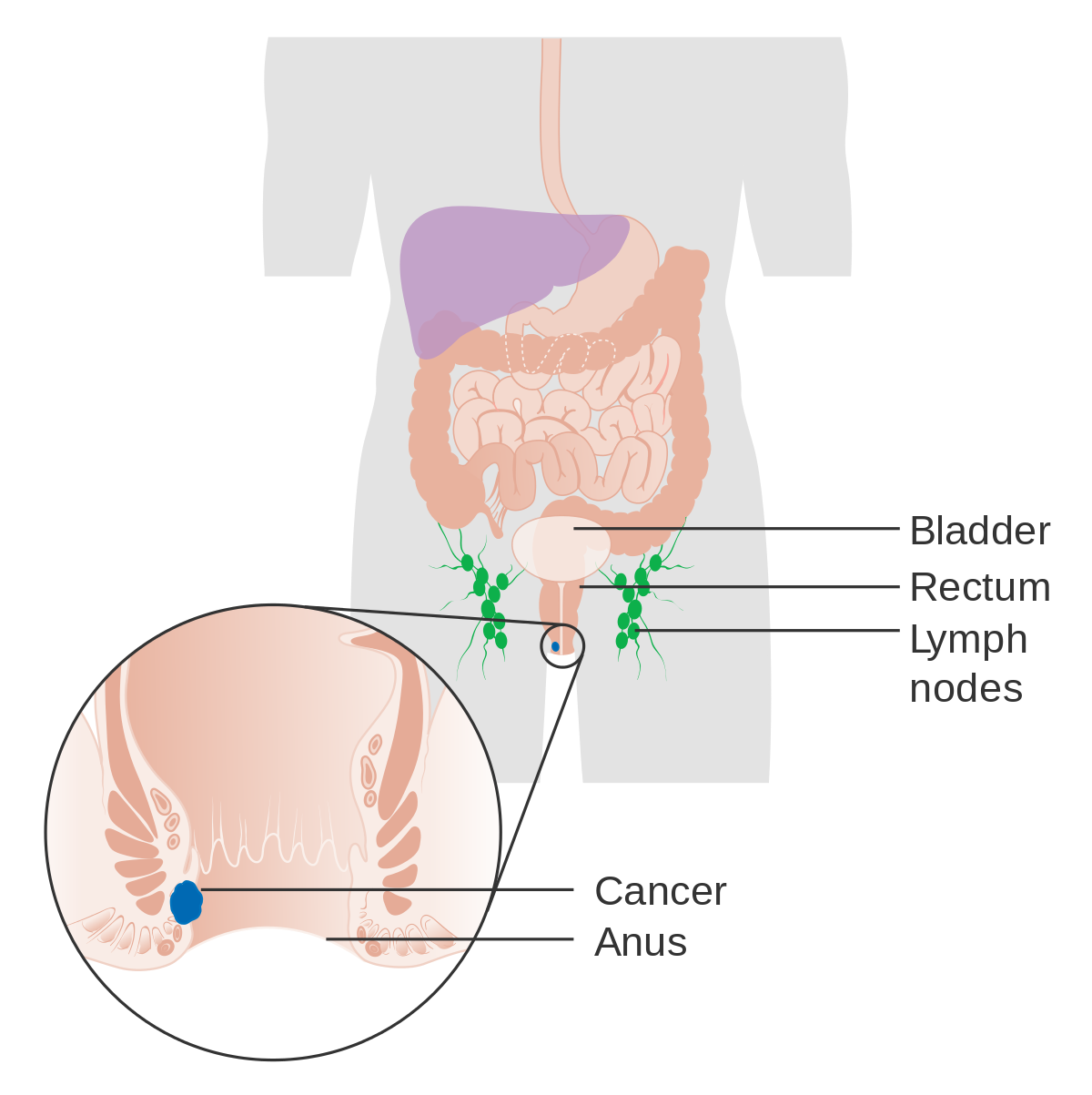 cancer vindecat prin imunoterapie what causes papillomas in breast ducts