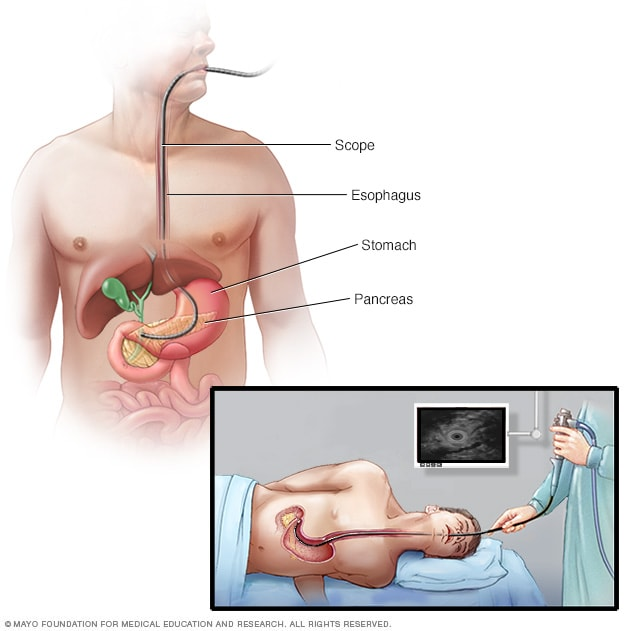 cancer pancreas que significa papillomatosis pathology outlines