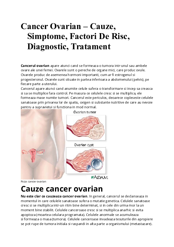 simptome cancer de ovare