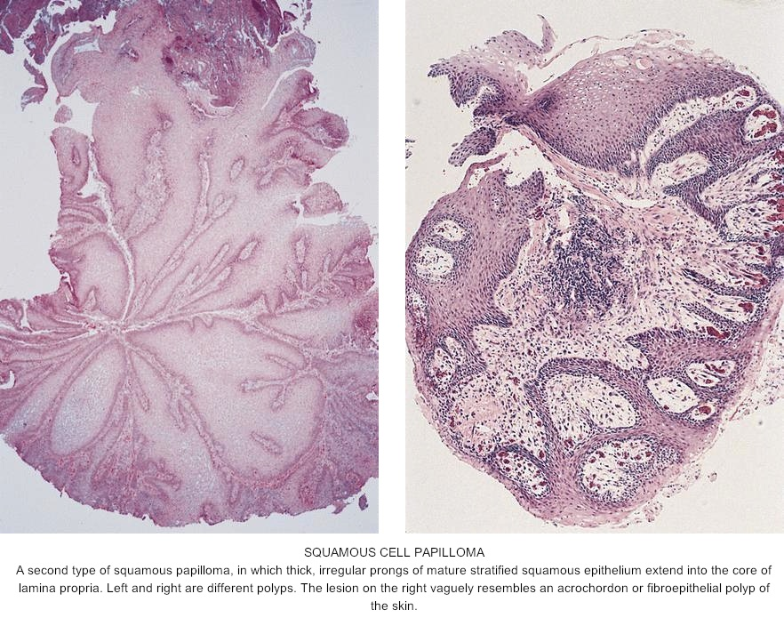 squamous papilloma pathology cancer vindecat prin imunoterapie