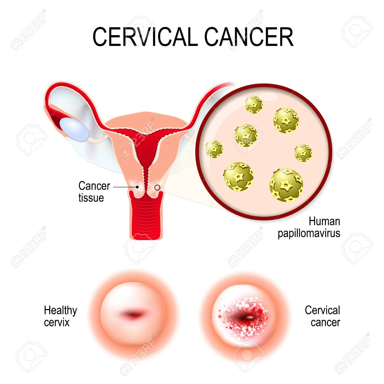 cervical cancer caused by hpv genetic papillomas