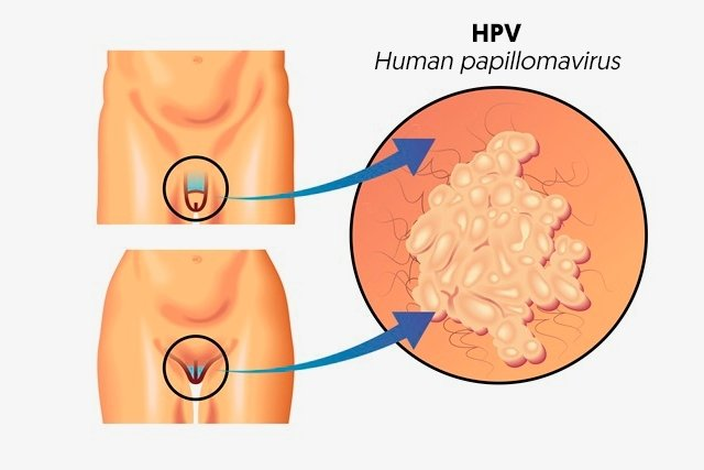 hpv causes cysts
