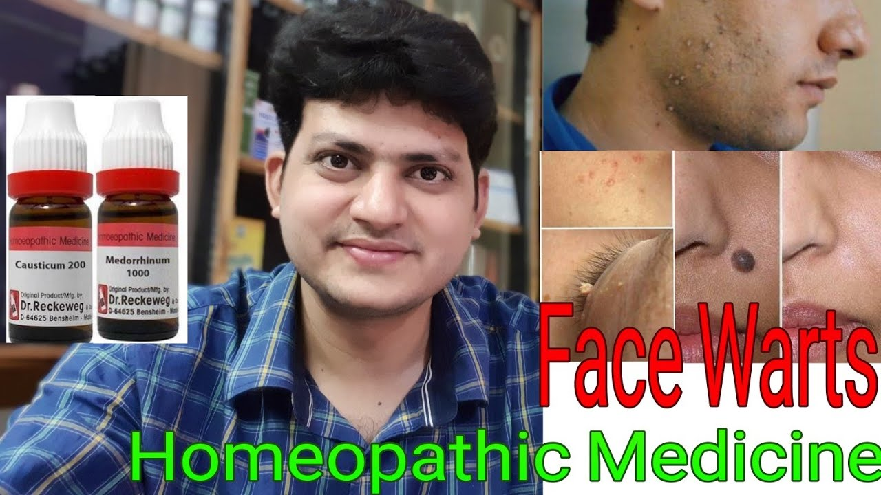 homeopathy treatment for papilloma cura de detoxifiere a organismului in 3 zile