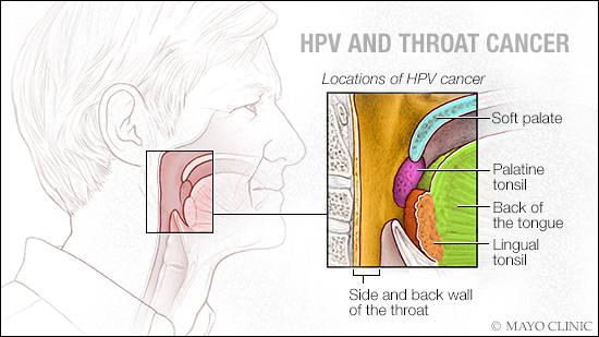 hpv causing rise in male throat cancer