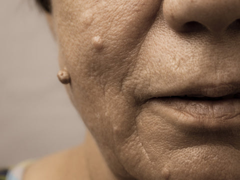 hpv face pictures