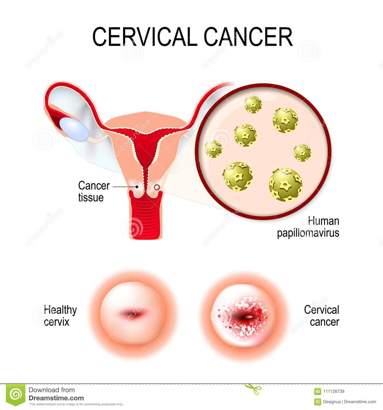 hpv to genital warts