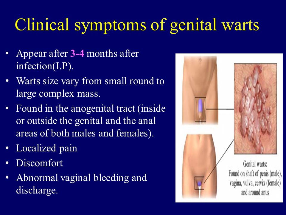 hpv warts discharge ajo contra oxiuros