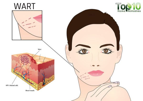 hpv warts face treatment