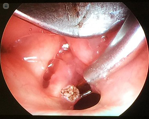 laser treatment for laryngeal papilloma does high risk hpv cause cancer