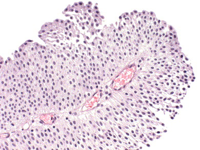 papillary urothelial tumor of low malignant potential