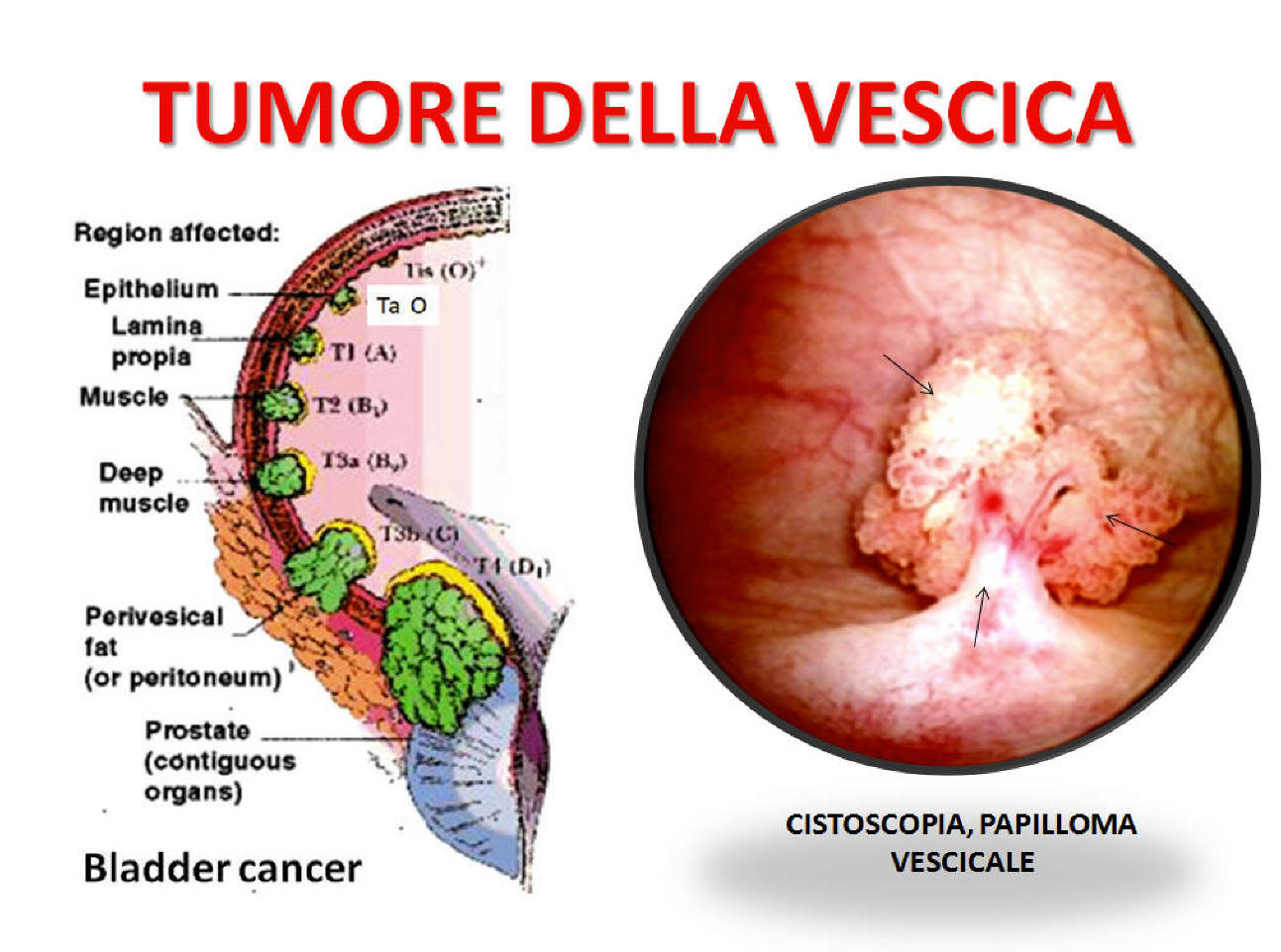 esophageal squamous papilloma and hpv cancerul colorectal sporadic