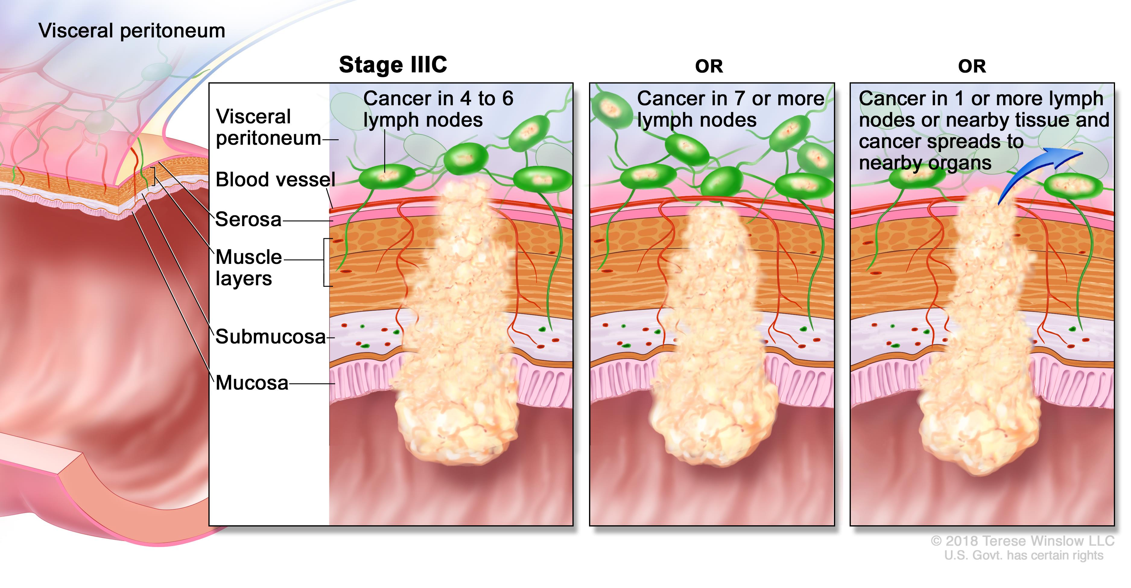 rectal cancer with adenocarcinoma