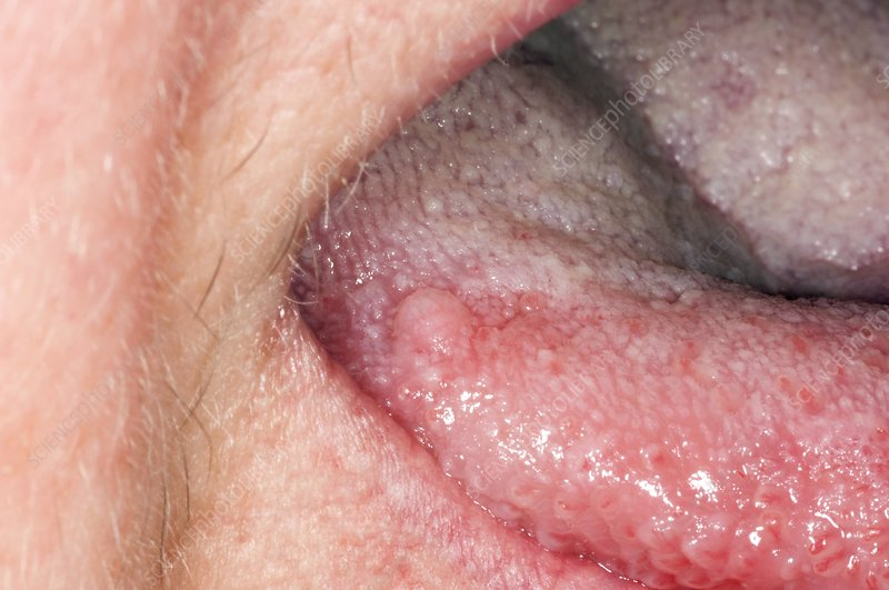 squamous papilloma is it contagious