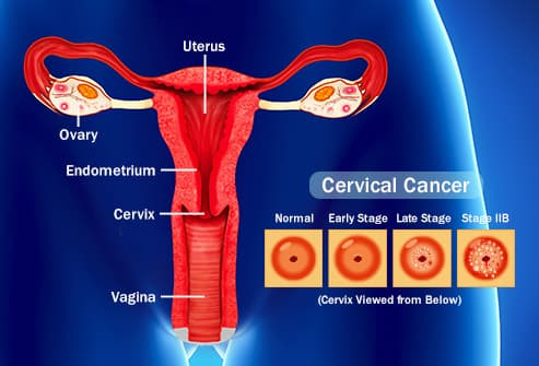 stage one hpv cervical cancer