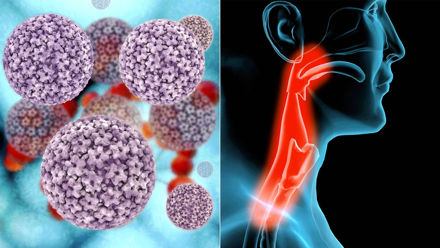 warts and cancer link hpv tumore alla gola