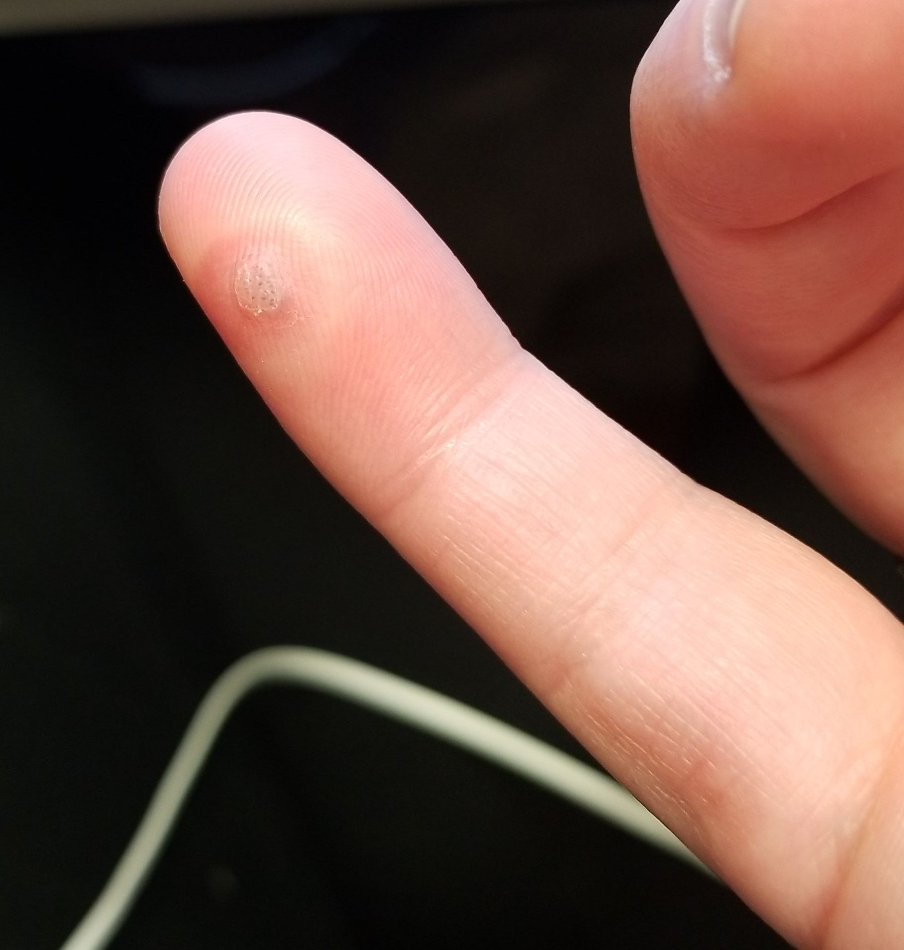 warts on hands that hurt